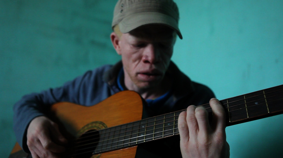 Albino man's music salves the soul